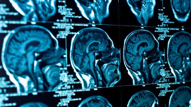 Jesz tłuste potrawy? Prowokujesz komórki do niszczenia połączeń w mózgu
